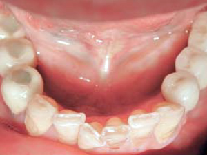 Long-Term Outcome of Cemented Versus Screw-Retained Implant-Supported Partial Restorations