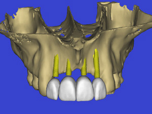 Bone Grafting Assessment: Focus on the Anterior and Posterior Maxilla Utilizing Advanced 3-D Imaging Technologies