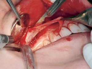 Lip Repositioning for Reduction of Excessive Gingival Display: A Clinical Report