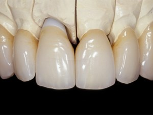All-Ceramic Restorations: Capabilities and Limitations