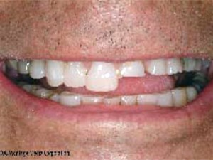 A Systematic Approach to Full-Mouth Reconstruction of the Severely Worn Dentition