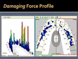 Computer-Guided Occlusal Analyses in optimizing Occlusal Function - Part 2 of 3