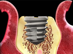 Implant Design Influence on Bone and Soft Tissue - Part 1 of 2