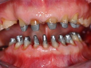 No Half Smiles - A Clinical Overview of Complete Care Dentistry - Part 2 of 2