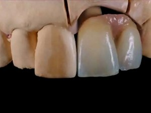 Conservative Form and Space Management in Anterior Implants, Veneers and Esthetic Therapy - Part 1 of 2