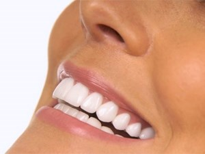 Tooth Whitening State of the Art - It takes a Team