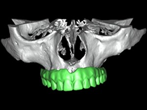 Digital Dentistry and Clinical Planning Applications - Guided Navigation Systems - Part 1 of 2