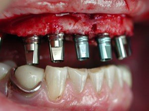 Immediate Loading in Implant Dentistry - Coherent Clinical Application in Everyday Practice