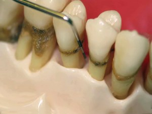 What to do when Good Teeth and Implants go Bad? The Standard of Care for Laser Periodontitis Treatment