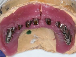 Simplifying Fixed Implant Therapy for the General Practitioner: A Review of Parts and Techniques