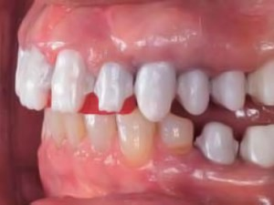 A retrospective analysis of 102 zirconia single crowns with knife-edge margins