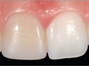 Efficacy and Persistence of Tooth Bleaching Using a Diode Laser with Three Different Treatment Regimens