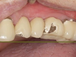 TMD, Parafunction and Occlusion for Natural Teeth and Implants: Diagnosis and Management