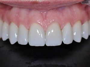The State of The Art in Whitening