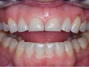 A Periodontal-Restorative Approach to Achieving an Esthetic Outcome in Worn Dentition