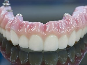 The Zirconia CAD CAM Screw Retained Implant Bridge: The Future of Full Arch Implant Supported Prosthetics