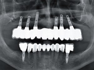 Clinical Investigation on Axial versus Tilted Implants for Immediate Fixed Rehabilitation of Edentulous Arches: Preliminary Results of a Single Cohort Study