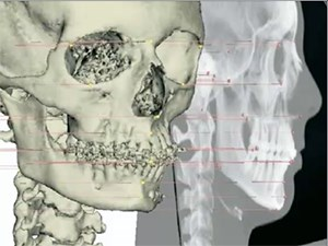 From 2D to 3D: The Benefits of 3D-X-ray in the Different Fields of Dentistry