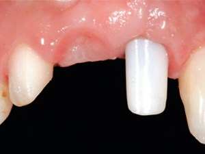 A Multi-faceted Treatment Approach for Anterior Reconstructions Using Current Ceramics, Implants and Adhesive Systems