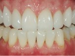 Management of Occlusion and Vertical Dimension in Esthetic Restorative Dentistry