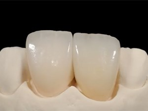 Restorative vs. Orthodontic Therapy; Alternative Management and Lab-Dentist Communication