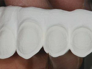 Treatment of the Fully Edentulous Patient: Prosthetic Implant Solutions