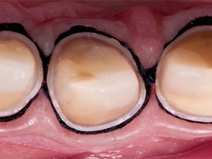 Esthetic Case Design and Minimally Invasive Tooth Preparation: The Role of Magnification
