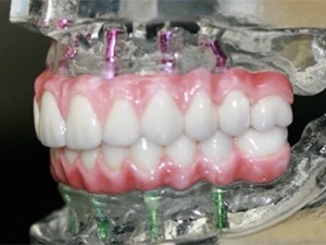 The Prettau Zirconia Implant Bridge: Rationalization & Multiple Case Examples