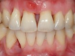 Esthetic Rehabilitation of the Periodontally Compromised Dentition