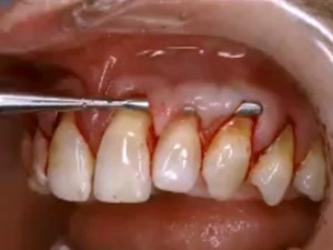 The Evolving Role of Soft Tissue Enhancement in Esthetic Reconstructive Dentistry