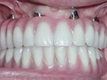 Tilted Implants, Angled Abutments and Restorative Solutions for the Edentulous Arch