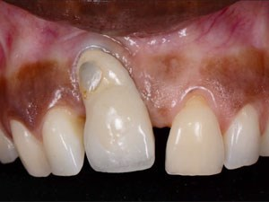 Management of Periodontal Complications: Science vs. Hype