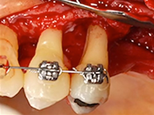 Periodontal-Prosthesis in Modern Dentistry – Part 2 of 2