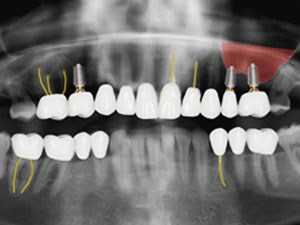 Implant Dentistry: The Team Approach