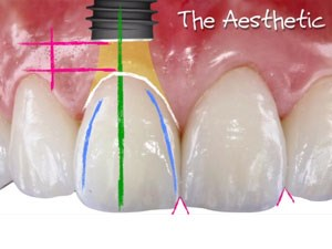 Combining Implant Replacement with Esthetic Restorative Dentistry