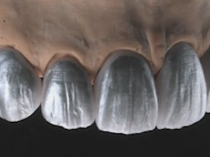 Minimally Invasive Esthetic Approach with Lithium Disilicate Adhesive Restorations