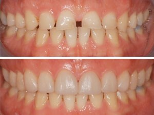 Full Arch Minimally Invasive Direct Composite Smile Makeover