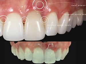 Modern Implant Concepts in the Esthetic Zone