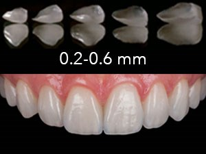 Back to the Future: Feldspathic Veneers & Zirconia Layering Techniques