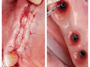 Buccal Sliding Palatal Pedicle Flap Technique for Wound Closure After Ridge Augmentation