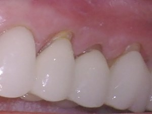Conservative Treatment of Exposed Crown Margins