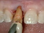 Simultaneous Extraction, Implant Placement and Augmentation