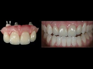 Restoring Pink & White Esthetics with Implant Restorations