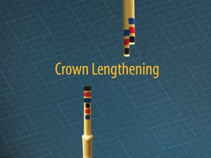 Chu's Aesthetic Guages: Crown Lengthening