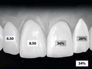 Range & Mean Distribution Frequency of Individual Tooth Width of the Maxillary Anterior Dentition
