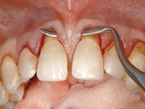 The Tunnel Technique in the Periodontal Plastic Treatment of Multiple Adjacent Gingival Recession Defects