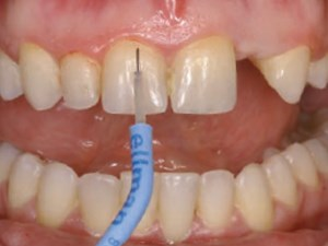 The Replacement of Small-Diameter Teeth in the Esthetic Zone Using Narrow-Diameter Implants