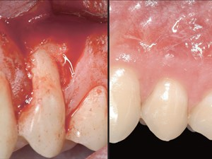 Healing of Gingival Recessions Using a Collagen Membrane with a Demineralized Xenograft